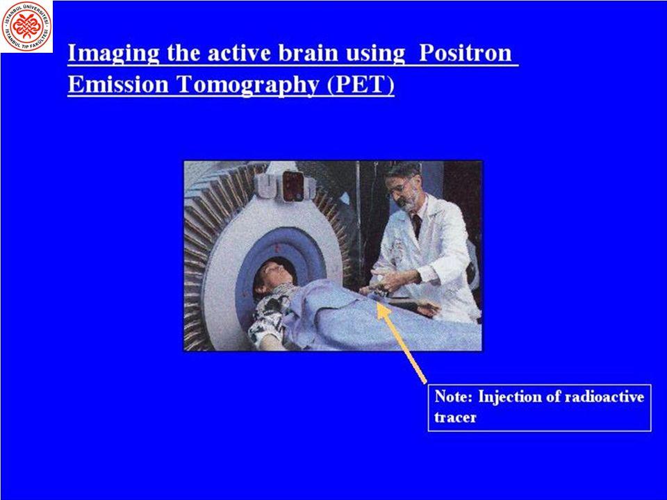Pozitron Emisyonu Tomografisi (PET) Beyin kan akımı kana verilen uygun bir traser ile elde edilebilir.