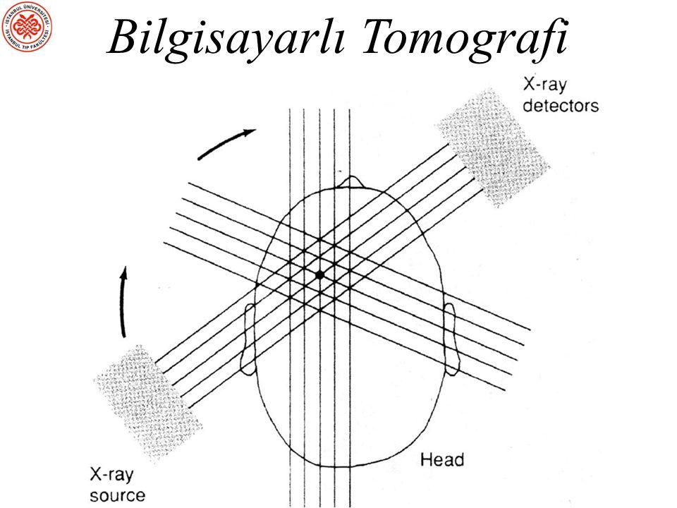 Beynin Yapısal Olarak İncelenmesi sBT (Bilgisayarlı Tomografi): X- ışınlarıyla beynin ince kesitleri alınır sMRG (Manyetik Rezonans Görüntüleme): Beyin yapısının incelenmesi için kullanılır