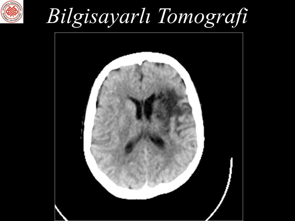 Fonksiyonel Manyetik Rezonans Görüntüleme (fMRG) Blood Oxygen Level Dependent (BOLD) tekniği: Dışarıdan traser verilmesi gerekli değil, internal bir maddenin (hemoglobin) manyetik özelliklerini kullanıyor.