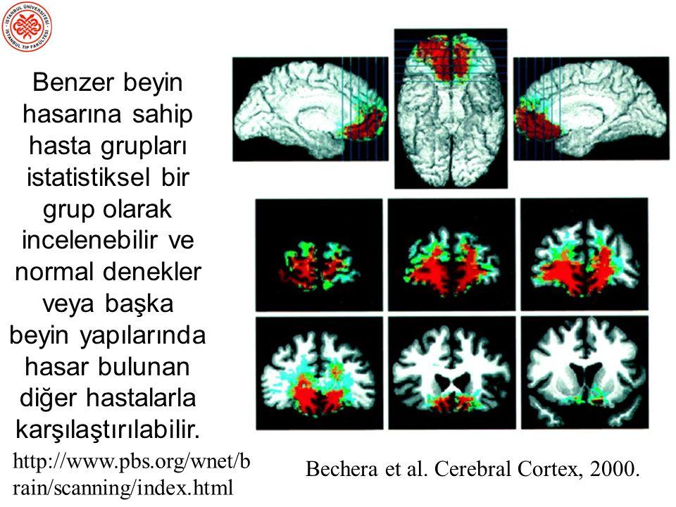 Bechera et al.Cerebral Cortex, 2000.