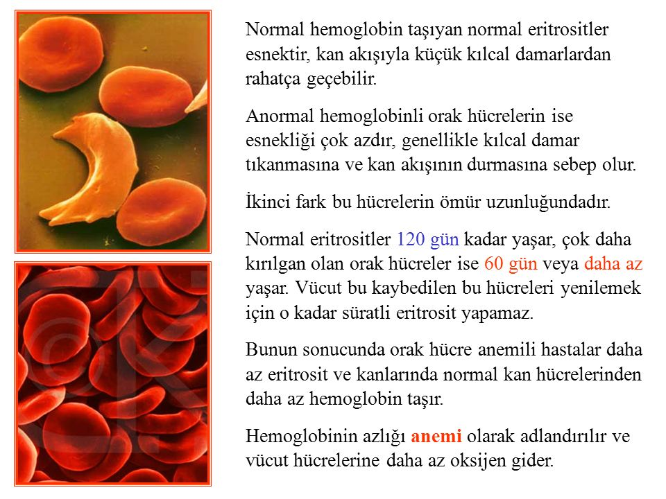 NORMAL HEMOGLOBIN AND SICKLE HEMOGLOBIN Normal hemoglobin taşıyan normal eritrositler esnektir, kan akışıyla küçük kılcal damarlardan rahatça geçebili