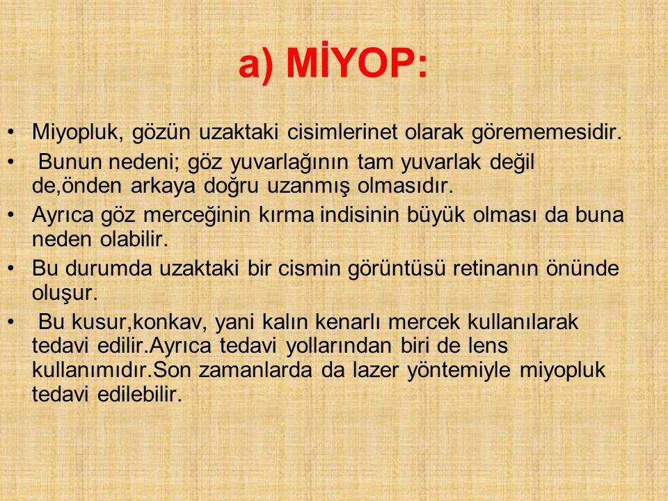 a) MİYOP: Miyopluk, gözün uzaktaki cisimlerinet olarak görememesidir. Bunun nedeni; göz yuvarlağının tam yuvarlak değil de,önden arkaya doğru uzanmış