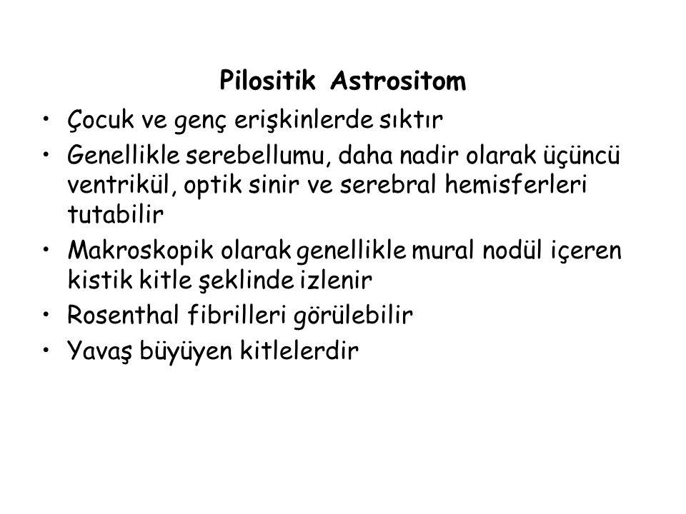 Pilositik Astrositom Çocuk ve genç erişkinlerde sıktır Genellikle serebellumu, daha nadir olarak üçüncü ventrikül, optik sinir ve serebral hemisferler
