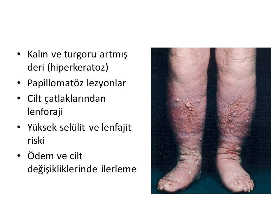 Kalın ve turgoru artmış deri (hiperkeratoz) Papillomatöz lezyonlar Cilt çatlaklarından lenforaji Yüksek selülit ve lenfajit riski Ödem ve cilt değişikliklerinde ilerleme