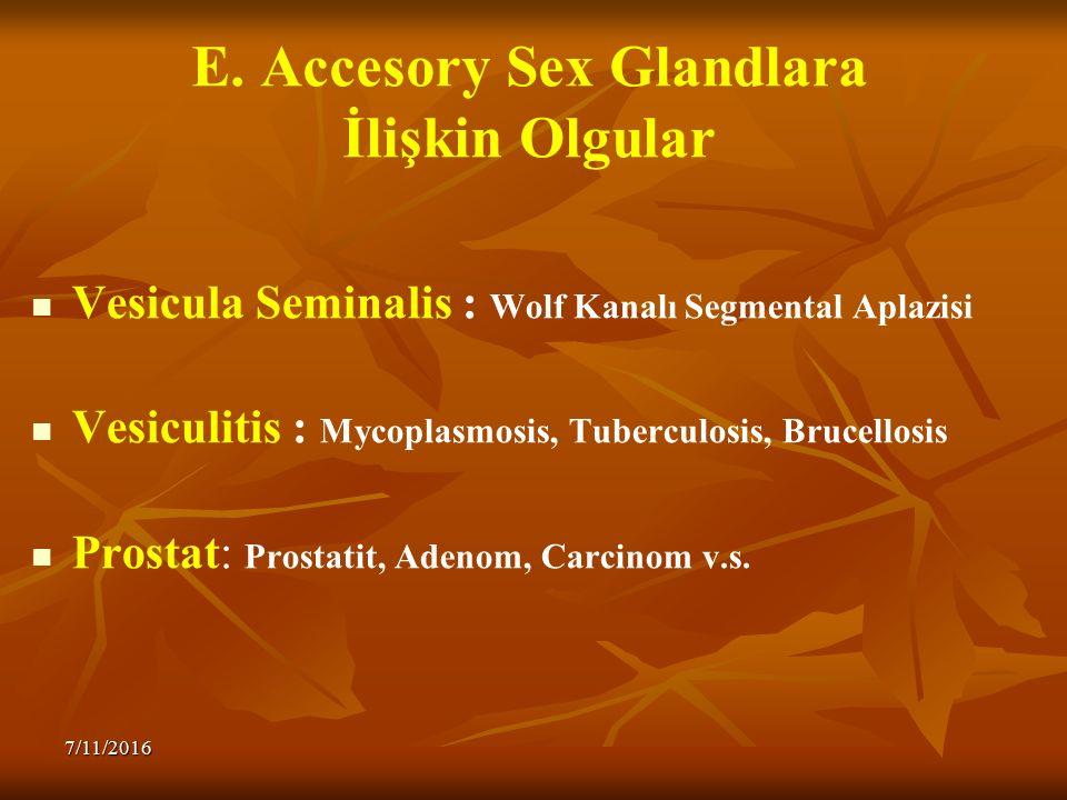 E. Accesory Sex Glandlara İlişkin Olgular Vesicula Seminalis : Wolf Kanalı Segmental Aplazisi Vesiculitis : Mycoplasmosis, Tuberculosis, Brucellosis P