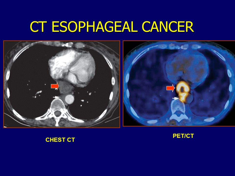 CT ESOPHAGEAL CANCER CHEST CT PET/CT
