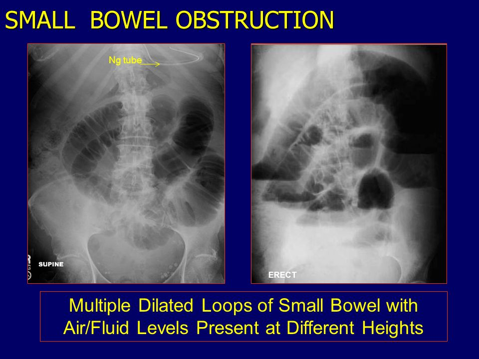 SMALL BOWEL OBSTRUCTION ERECT Multiple Dilated Loops of Small Bowel with Air/Fluid Levels Present at Different Heights Ng tube