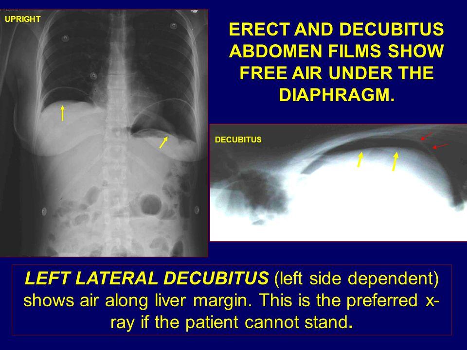 ERECT AND DECUBITUS ABDOMEN FILMS SHOW FREE AIR UNDER THE DIAPHRAGM. DECUBITUS UPRIGHT LEFT LATERAL DECUBITUS (left side dependent) shows air along li