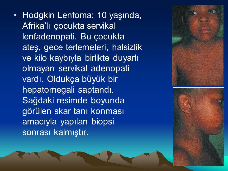 Hodgkin Lenfoma: 10 yaşında, Afrika'lı çocukta servikal lenfadenopati.