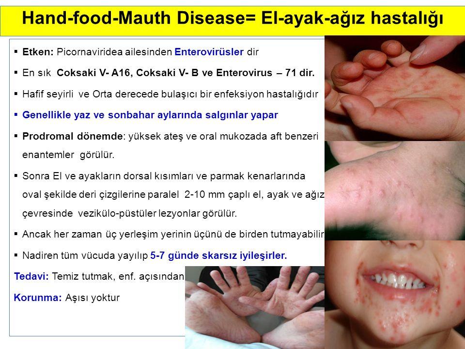 Hand-food-Mauth Disease= El-ayak-ağız hastalığı  Etken: Picornaviridea ailesinden Enterovirüsler dir  En sık Coksaki V- A16, Coksaki V- B ve Enterovirus – 71 dir.