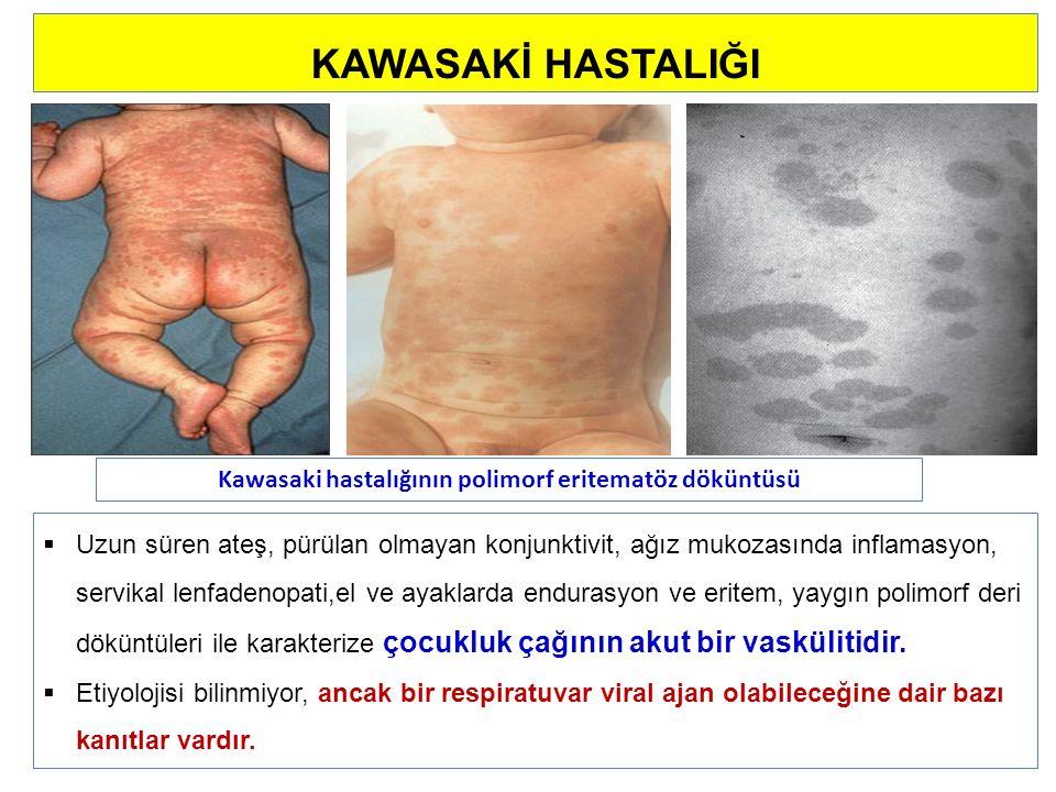 Kawasaki hastalığının polimorf eritematöz döküntüsü KAWASAKİ HASTALIĞI  Uzun süren ateş, pürülan olmayan konjunktivit, ağız mukozasında inflamasyon, servikal lenfadenopati,el ve ayaklarda endurasyon ve eritem, yaygın polimorf deri döküntüleri ile karakterize çocukluk çağının akut bir vaskülitidir.