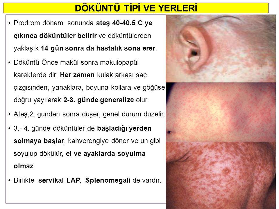 KOMPLİKASYONLAR: Sekonder deri enfeksiyonları (Streptokok veya Stafilokoklar) Sıklıkla, Yenidoğanlar ve İmmunsüpresifler de görülür  Hemorajik lezyonlar ( purpura fulminans, varisella gangrenosa).