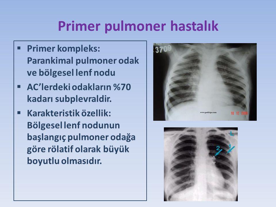 Primer pulmoner hastalık  Primer kompleks: Parankimal pulmoner odak ve bölgesel lenf nodu  AC'lerdeki odakların %70 kadarı subplevraldir.