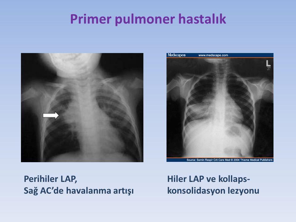 Primer pulmoner hastalık Perihiler LAP, Sağ AC'de havalanma artışı Hiler LAP ve kollaps- konsolidasyon lezyonu