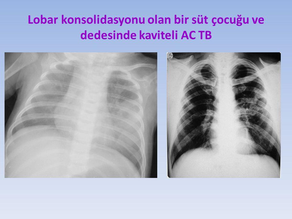 Lobar konsolidasyonu olan bir süt çocuğu ve dedesinde kaviteli AC TB