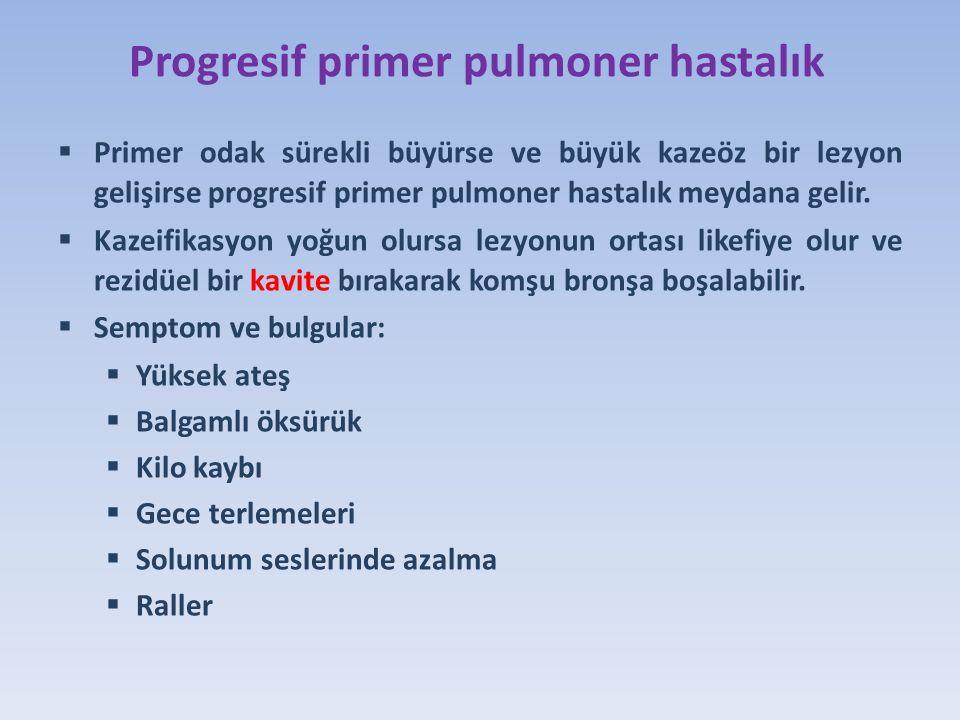 Progresif primer pulmoner hastalık  Primer odak sürekli büyürse ve büyük kazeöz bir lezyon gelişirse progresif primer pulmoner hastalık meydana gelir.