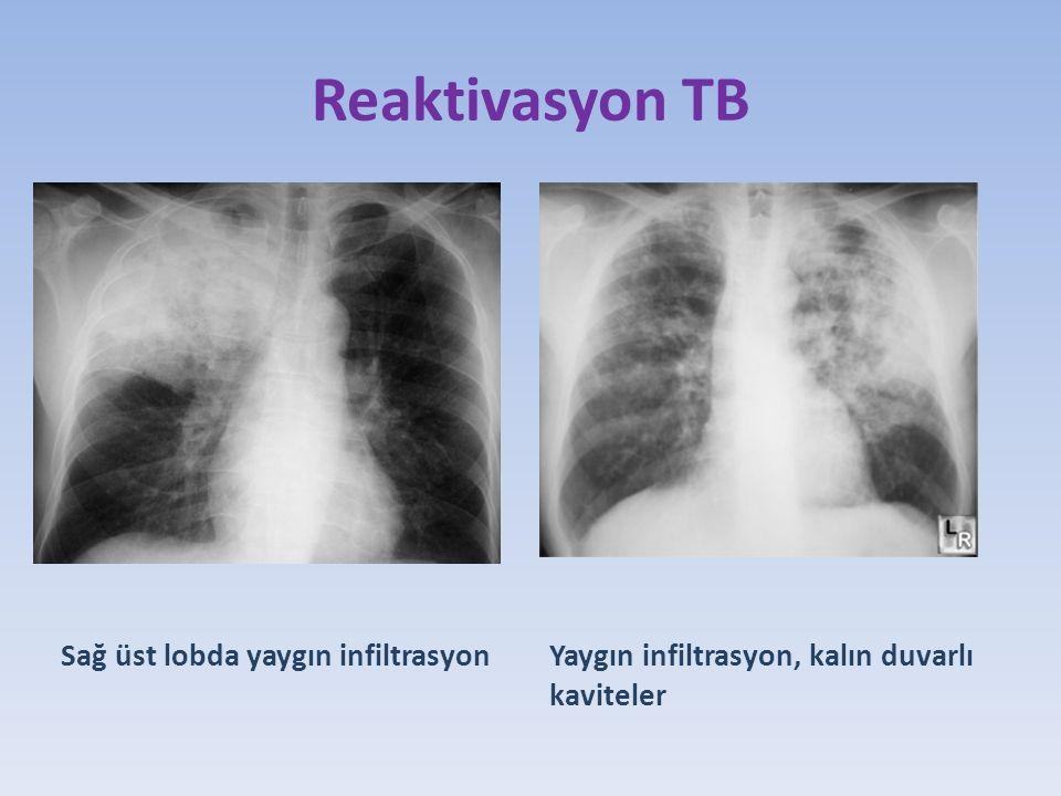 Reaktivasyon TB Yaygın infiltrasyon, kalın duvarlı kaviteler Sağ üst lobda yaygın infiltrasyon