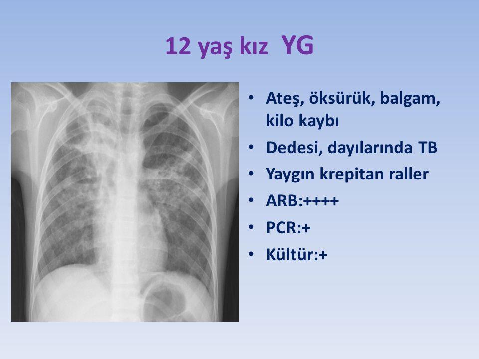 12 yaş kız YG Ateş, öksürük, balgam, kilo kaybı Dedesi, dayılarında TB Yaygın krepitan raller ARB:++++ PCR:+ Kültür:+
