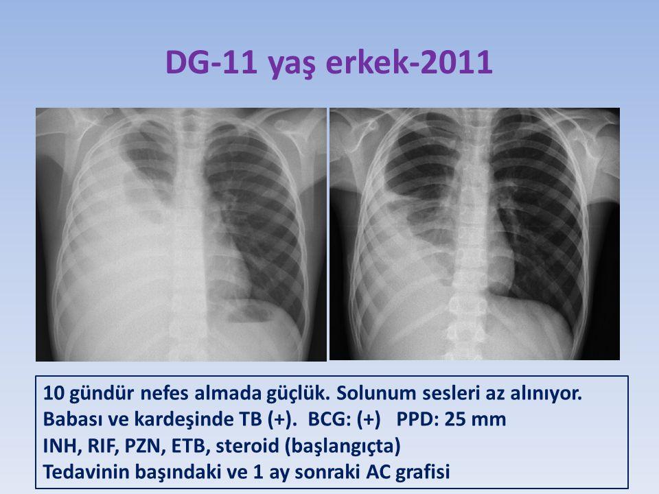 DG-11 yaş erkek-2011 10 gündür nefes almada güçlük.