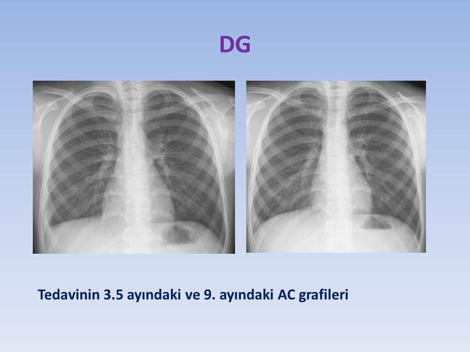 DG Tedavinin 3.5 ayındaki ve 9. ayındaki AC grafileri