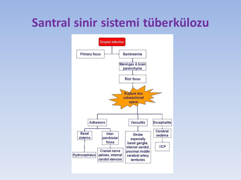 Santral sinir sistemi tüberkülozu