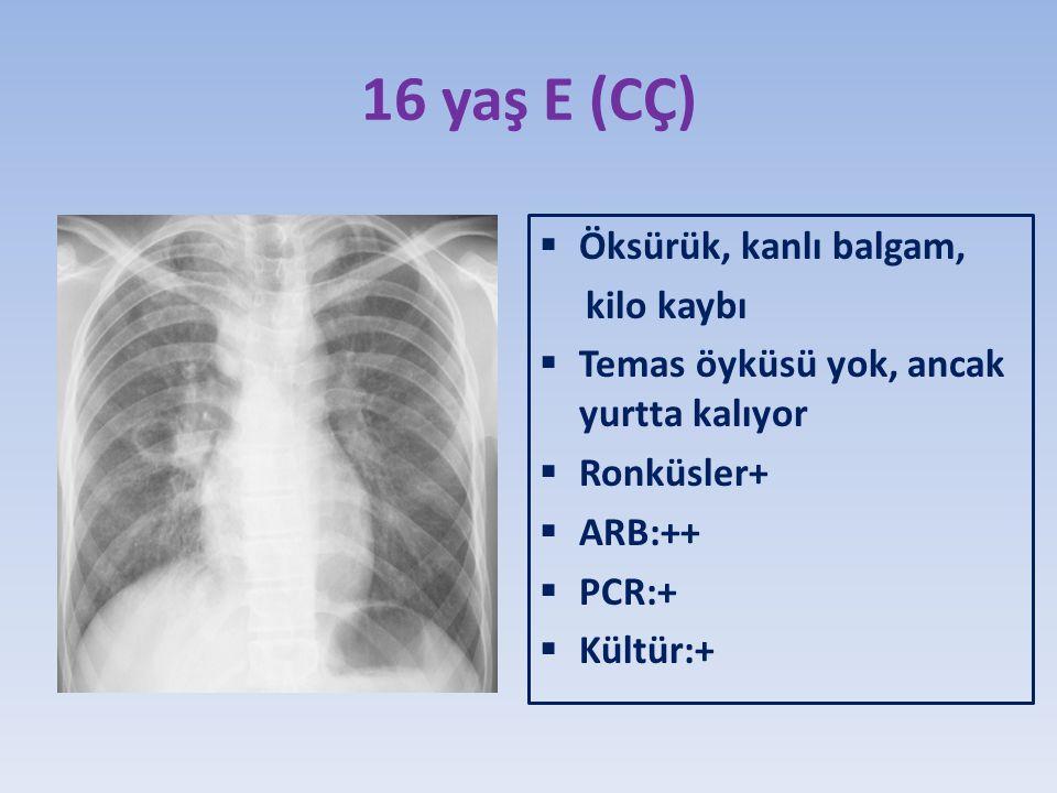 16 yaş E (CÇ)  Öksürük, kanlı balgam, kilo kaybı  Temas öyküsü yok, ancak yurtta kalıyor  Ronküsler+  ARB:++  PCR:+  Kültür:+