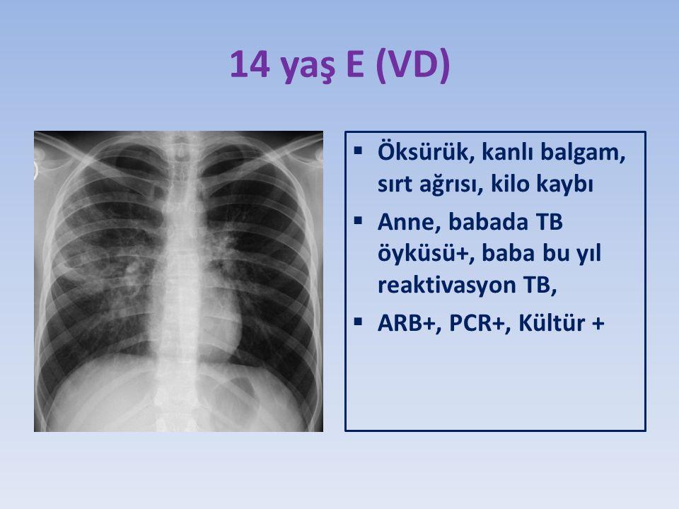 14 yaş E (VD)  Öksürük, kanlı balgam, sırt ağrısı, kilo kaybı  Anne, babada TB öyküsü+, baba bu yıl reaktivasyon TB,  ARB+, PCR+, Kültür +