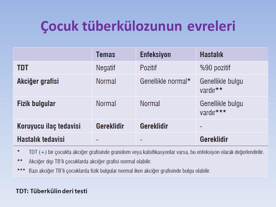 Çocuk tüberkülozunun evreleri TDT: Tüberkülin deri testi