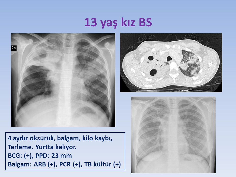 13 yaş kız BS 4 aydır öksürük, balgam, kilo kaybı, Terleme.