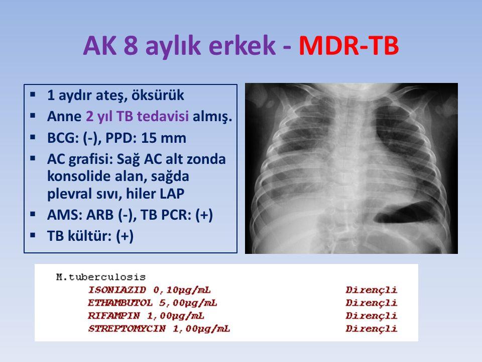 AK 8 aylık erkek - MDR-TB  1 aydır ateş, öksürük  Anne 2 yıl TB tedavisi almış.