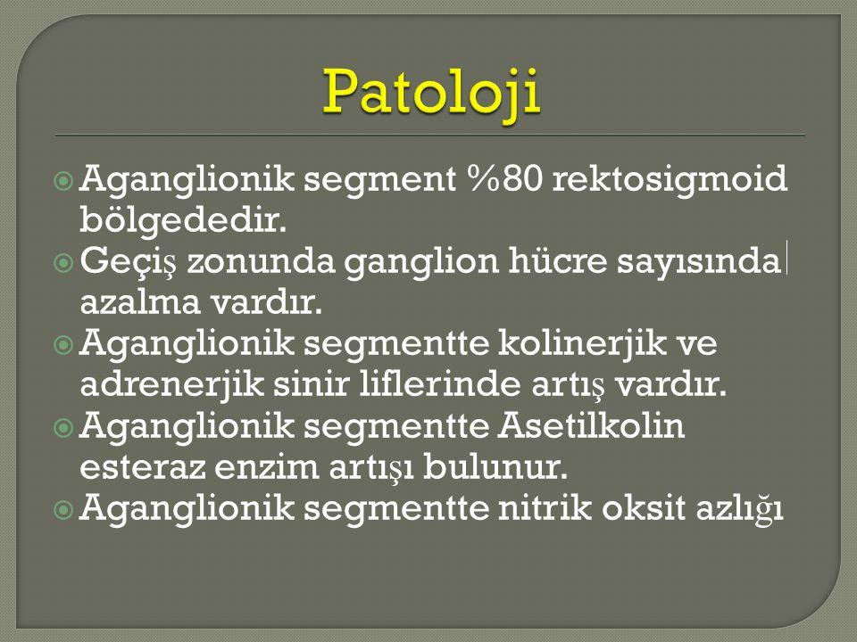  Aganglionik segment %80 rektosigmoid bölgededir.