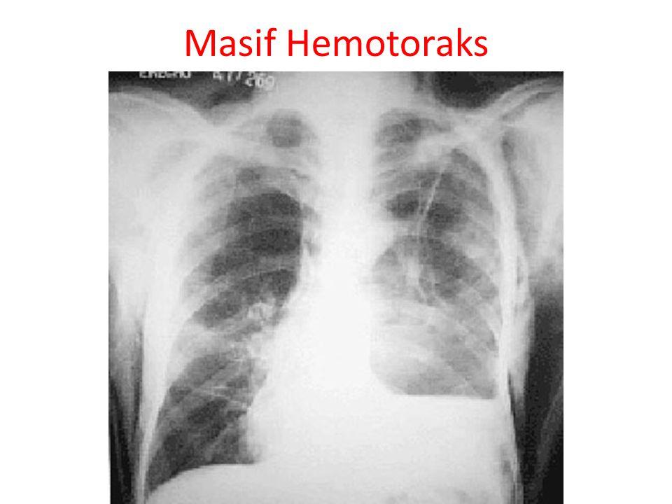 Flail Chest (Yelken göğüs) Tanı 2 veya daha fazla komşu kot 2 veya daha fazla yerden kırık Toraksta bir bölüm serbest hareket eder Paradoksal solunum Pulmoner kontüzyon eşlik eder Tedavi Pulmoner kontüzyon eşlik eder O 2, sıvı tedavisi, interkostal analjezi, gerekirse entübasyon ve PEEP