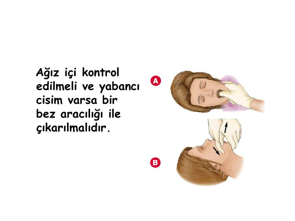 Ağız içi kontrol edilmeli ve yabancı cisim varsa bir bez aracılığı ile çıkarılmalıdır.