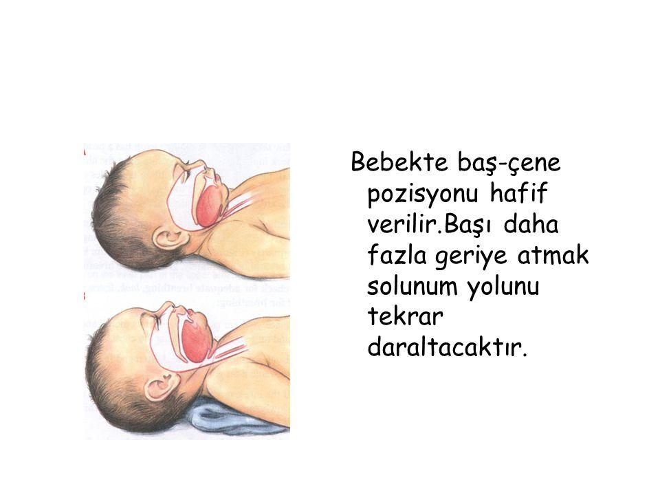 Bebekte baş-çene pozisyonu hafif verilir.Başı daha fazla geriye atmak solunum yolunu tekrar daraltacaktır.