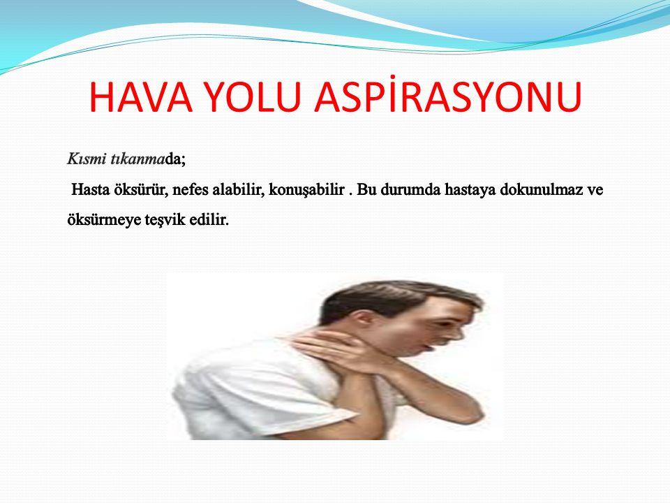 HAVA YOLU ASPİRASYONU