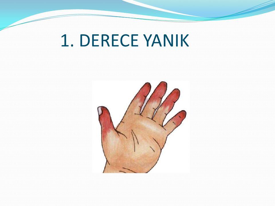 1. DERECE YANIK