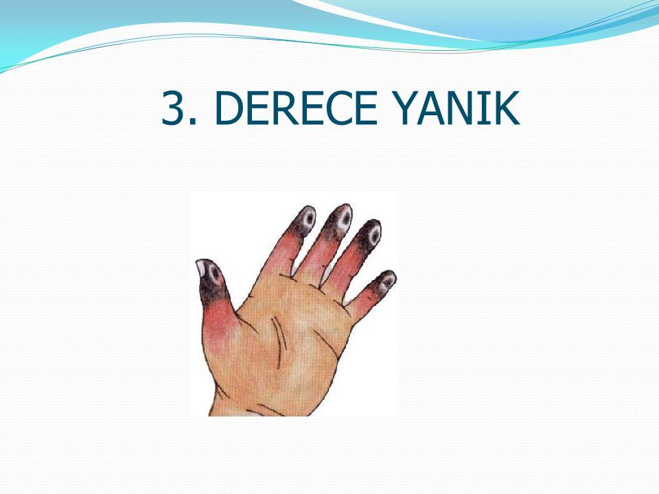 3. DERECE YANIK