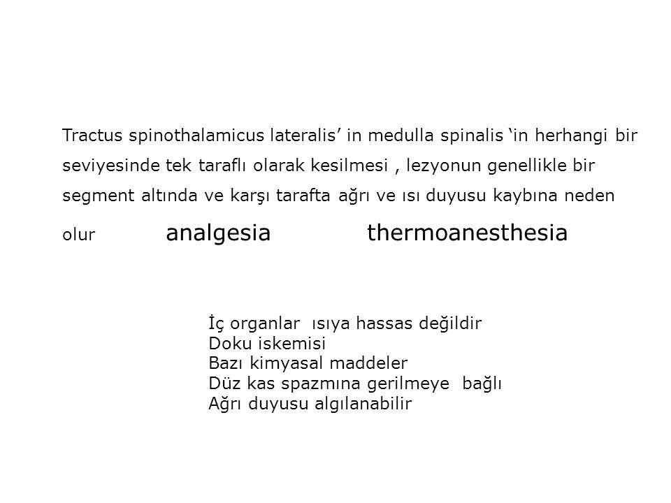 Tractus spinothalamicus lateralis' in medulla spinalis 'in herhangi bir seviyesinde tek taraflı olarak kesilmesi, lezyonun genellikle bir segment altı