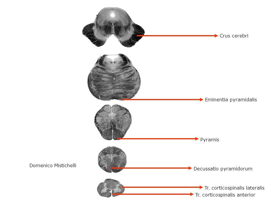 Eminentia pyramidalis Pyramis Crus cerebri Decussatio pyramidorum Tr. corticospinalis lateralis Tr. corticospinalis anterior Domenico Mistichelli