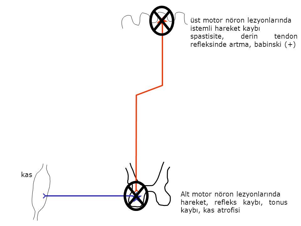 üst motor nöron lezyonlarında istemli hareket kaybı spastisite, derin tendon refleksinde artma, babinski (+) Alt motor nöron lezyonlarında hareket, re