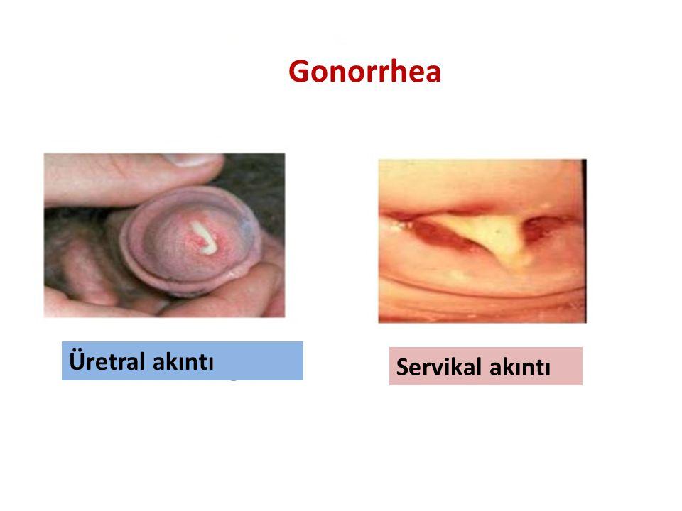 Üretral akıntı Servikal akıntı Gonorrhea