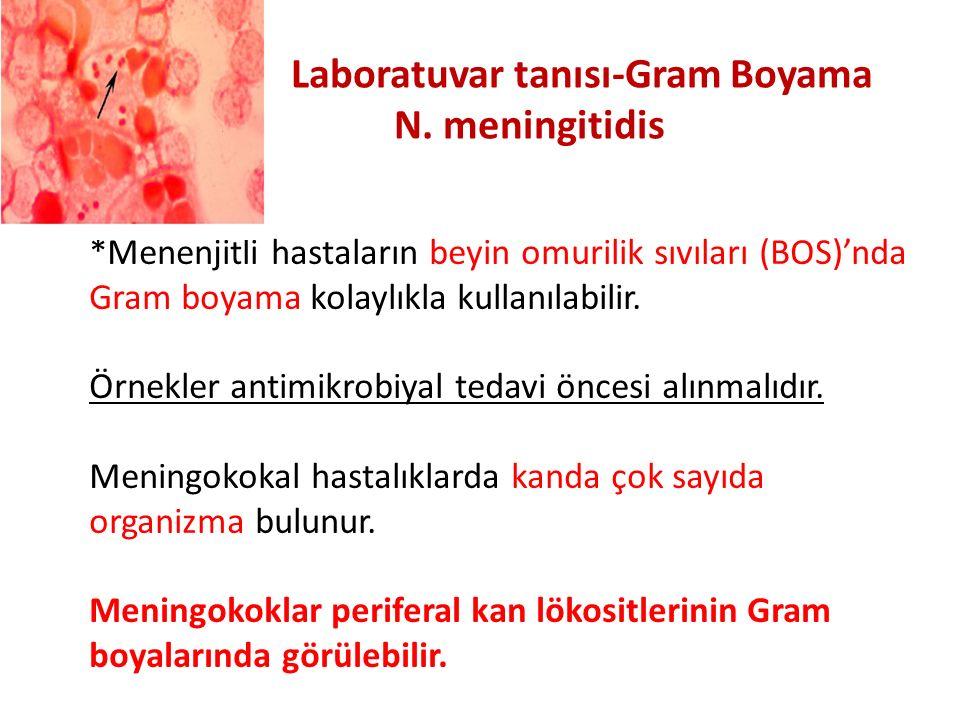 Laboratuvar tanısı-Gram Boyama N. meningitidis *Menenjitli hastaların beyin omurilik sıvıları (BOS)'nda Gram boyama kolaylıkla kullanılabilir. Örnekle