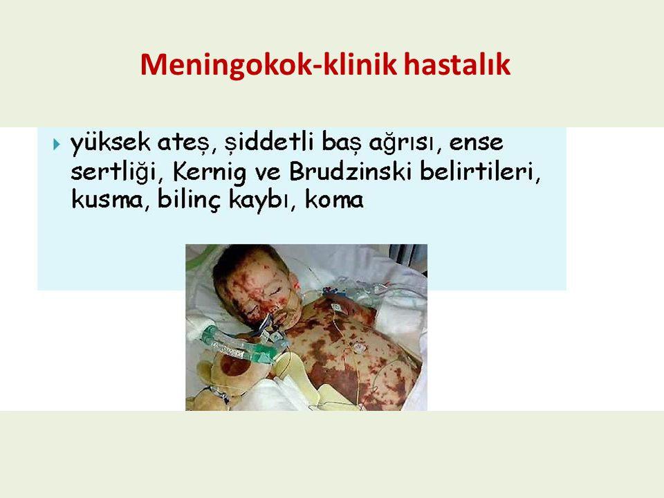 Neisseria meningitidis menenjitin ikinci en yaygın etkeni N. meningitidis %19 S. pneumoniae %53 Meningokok-klinik hastalık