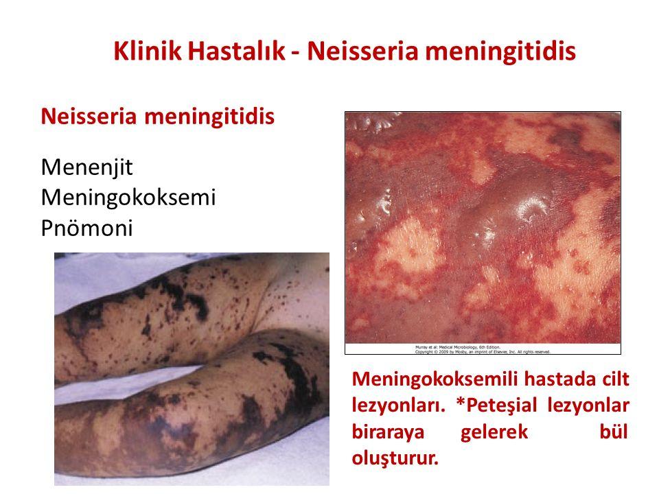 Neisseria meningitidis Menenjit Meningokoksemi Pnömoni Klinik Hastalık - Neisseria meningitidis Meningokoksemili hastada cilt lezyonları. *Peteşial le