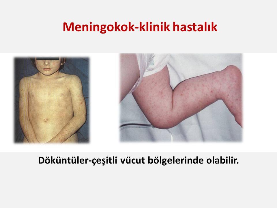 N. meningitidis Boyun Sertliği Döküntüler-çeşitli vücut bölgelerinde olabilir. Meningokok-klinik hastalık