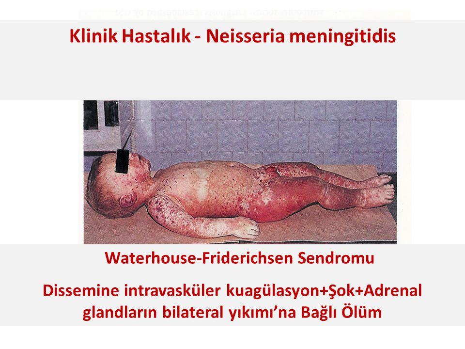 Waterhouse-Friderichsen Sendromu Dissemine intravasküler kuagülasyon+Şok+Adrenal glandların bilateral yıkımı'na Bağlı Ölüm Klinik Hastalık - Neisseria meningitidis