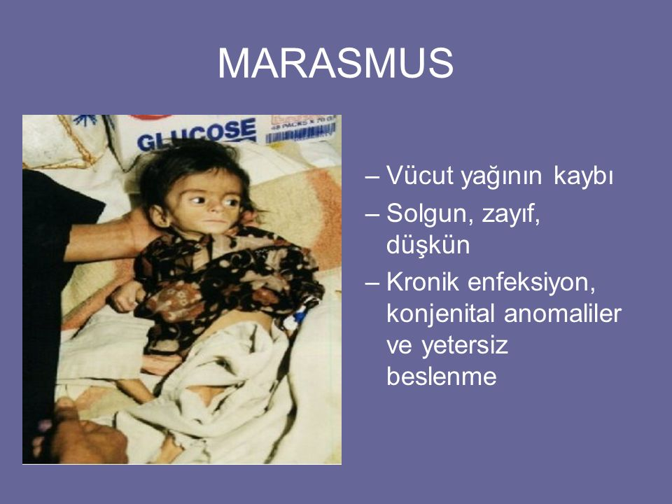 MARASMUS –Vücut yağının kaybı –Solgun, zayıf, düşkün –Kronik enfeksiyon, konjenital anomaliler ve yetersiz beslenme