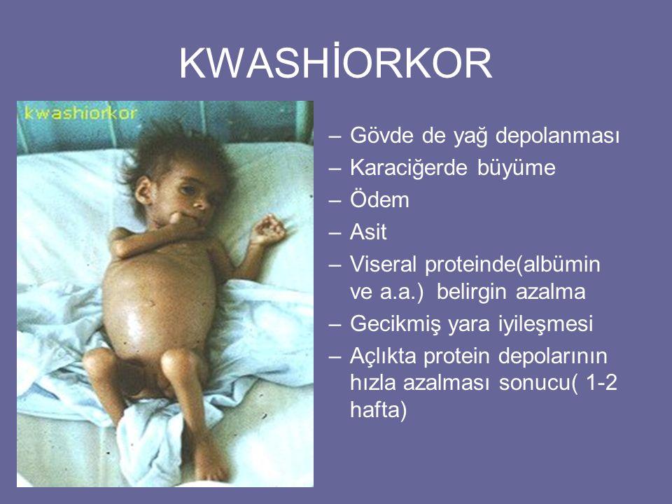 KWASHİORKOR –Gövde de yağ depolanması –Karaciğerde büyüme –Ödem –Asit –Viseral proteinde(albümin ve a.a.) belirgin azalma –Gecikmiş yara iyileşmesi –A