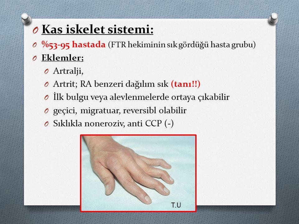 O Kas iskelet sistemi: O %53-95 hastada (FTR hekiminin sık gördüğü hasta grubu) O Eklemler; O Artralji, O Artrit; RA benzeri dağılım sık (tanı!!) O İlk bulgu veya alevlenmelerde ortaya çıkabilir O geçici, migratuar, reversibl olabilir O Sıklıkla noneroziv, anti CCP (-) T.U