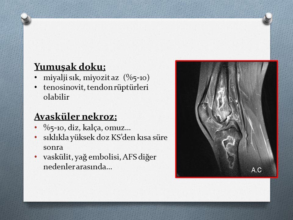 A.C. Yumuşak doku; miyalji sık, miyozit az (%5-10) tenosinovit, tendon rüptürleri olabilir Avasküler nekroz; %5-10, diz, kalça, omuz… sıklıkla yüksek